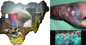 Ebola Threatens Nigeria's GDP